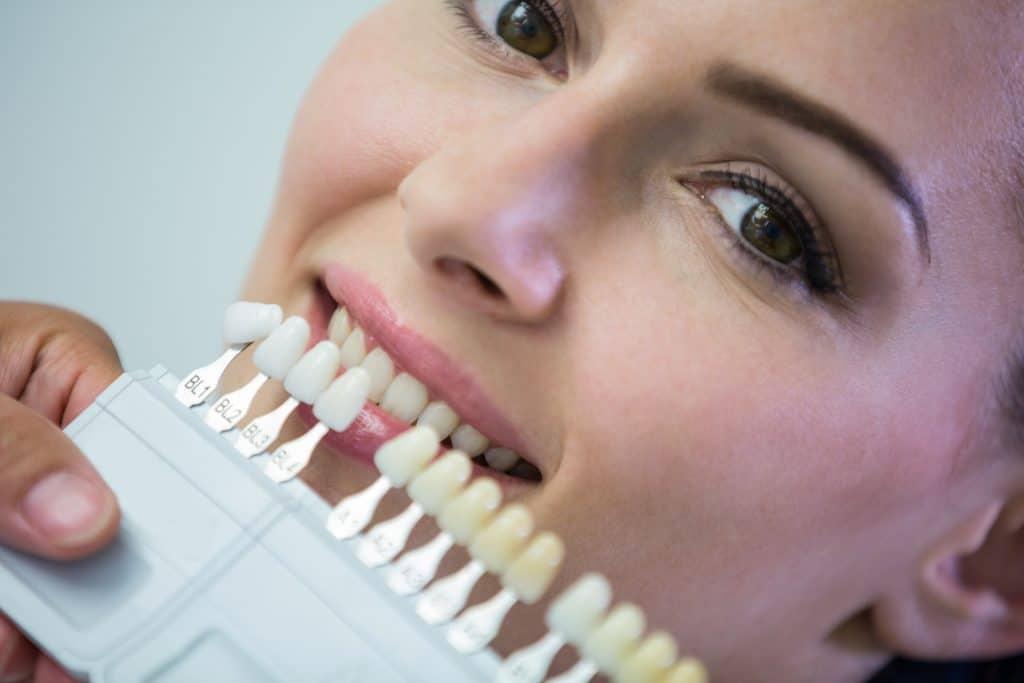 אישה מחזיקה בדוגמאות של שיניים בגווני צבע