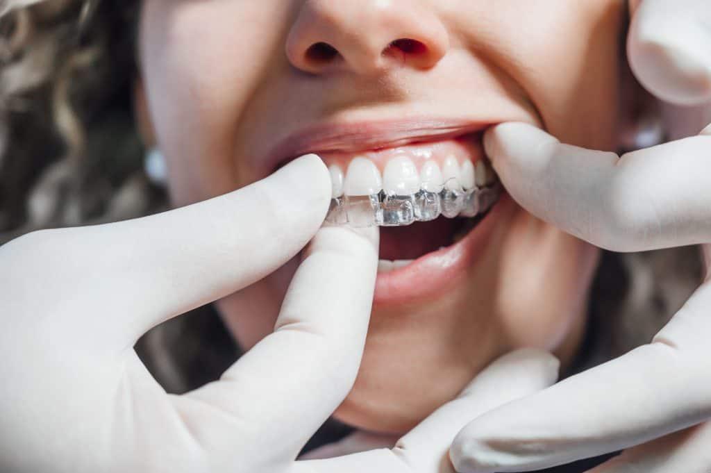 רופא שיניים שם למטופלת גשר שיניים שקוף